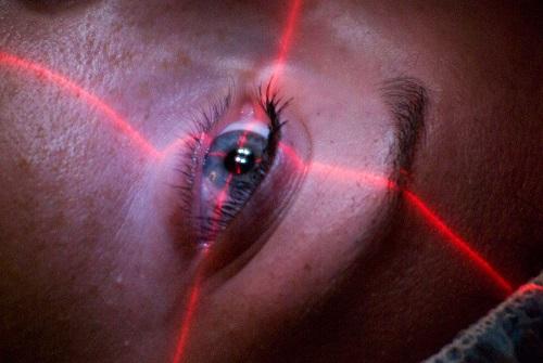 cirugía ocular LASIK