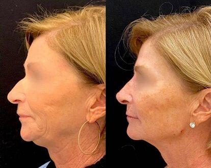 lifting facial y cuello