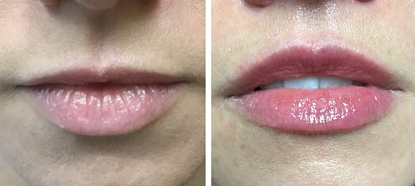 lifting de labios