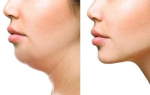 double chin liposuction surgery