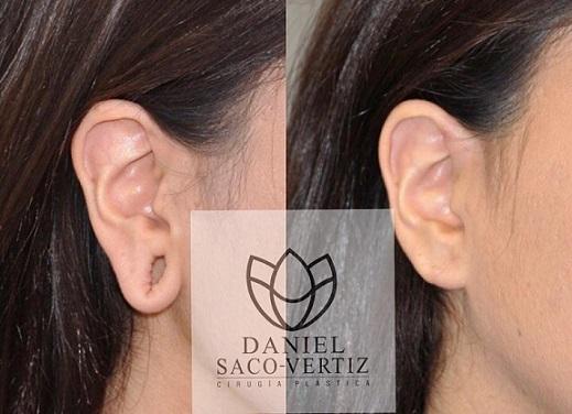 ear lobe repair