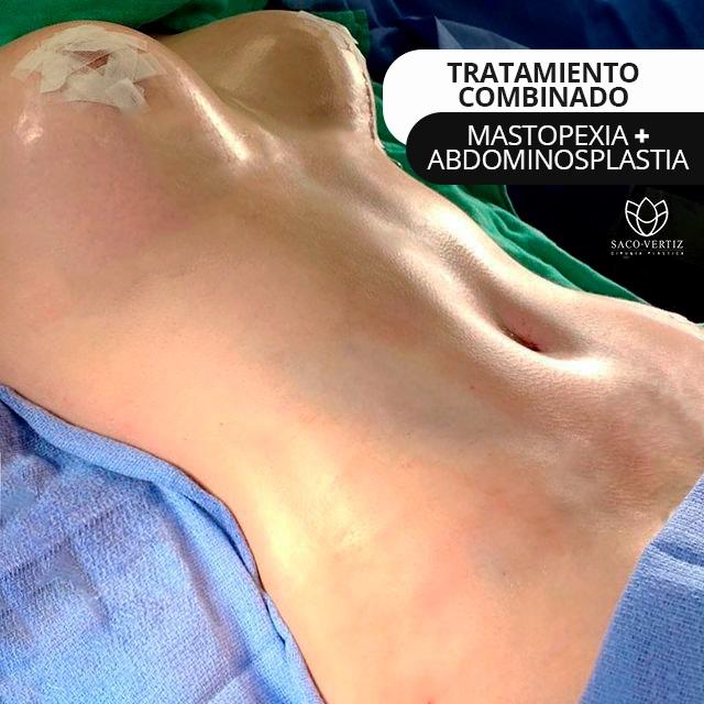 mastopexy abdominoplasty