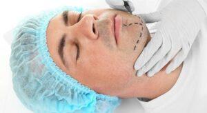 rhinomentoplasty