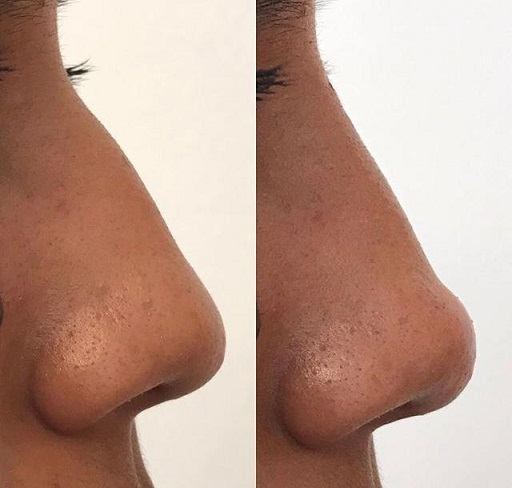rhinoplasty lima