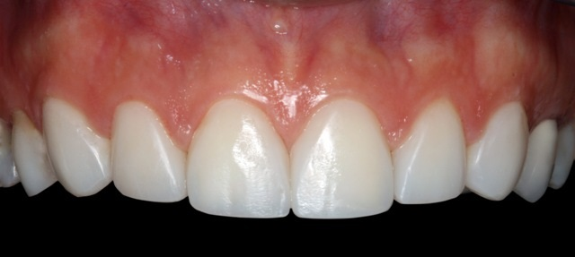 smile design veneers 2