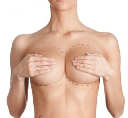surgery-peru-breast-reconstruction