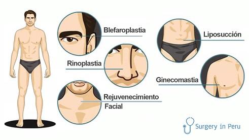 cirugía plastica para hombres
