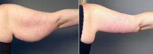 arm lift lima peru
